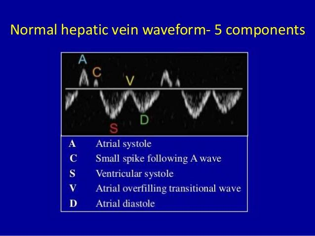 Hepatic Vein - Normal Waveform of 5 components. | Radio ...