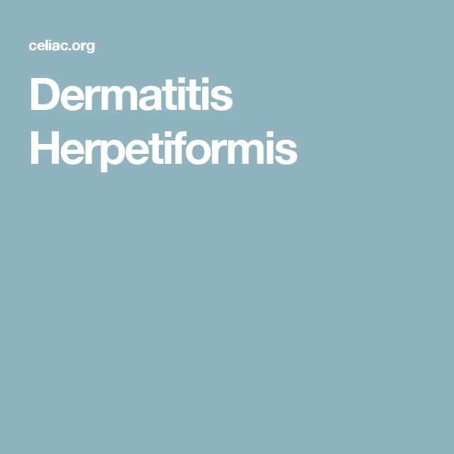 Dermatitis Herpetiformis and Iodine Exposure   Celiac ...