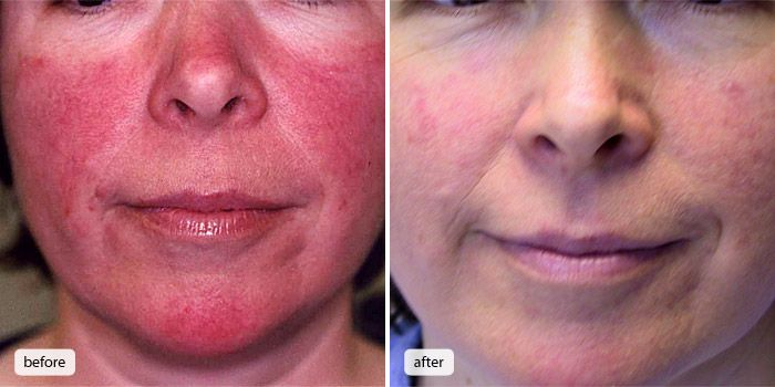 Before After Treatment Szukaj W Google Rosacea Symptoms Rosacea Treatment Rosacea