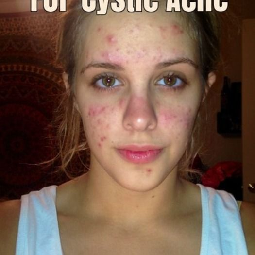Cystic Acne Treatment - Cystic Acne Treatment - Clearing The Worst ...