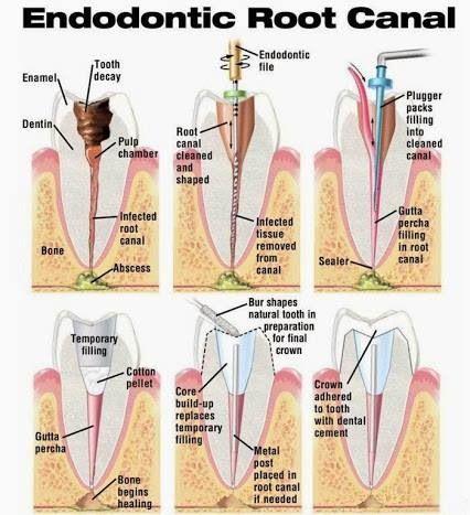 Fases de tratamiento pulpar!!! | Dental information | Pinterest ...