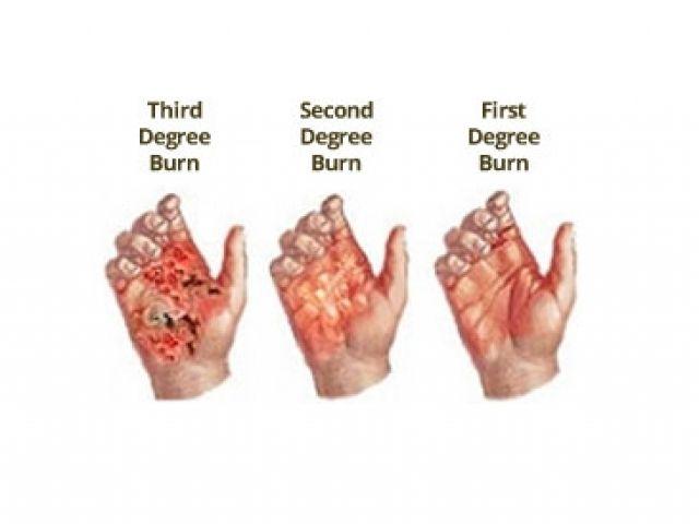 First Second And Third Degree Burns Degree Burns Burn Injury