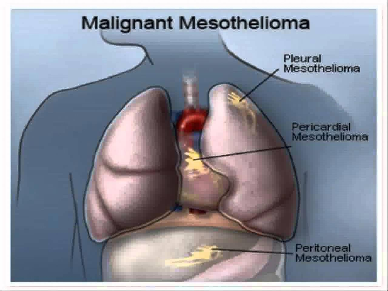 Pin on mesothelioma treatment