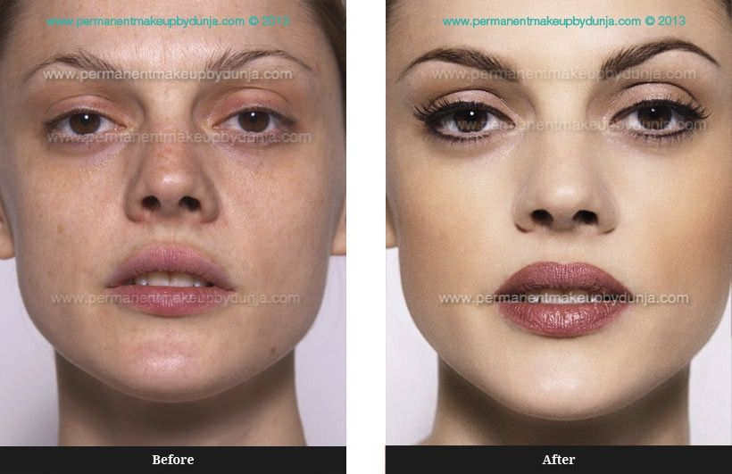 b90591727 ... microart semi permanent makeup correction removal. Eyeliner Tattooing  Before And After Full Face Enhancement