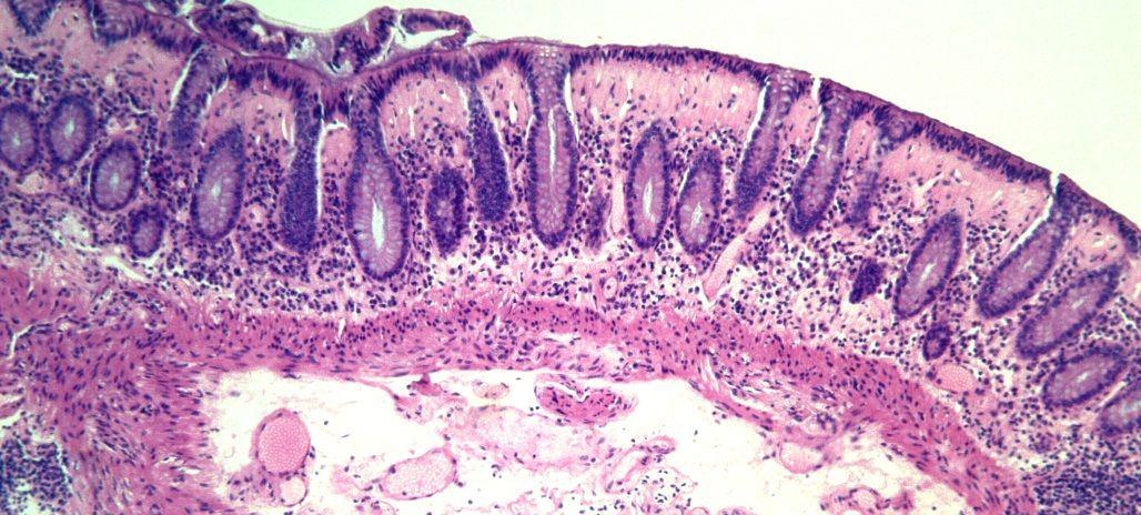 Lymphocytic Colitis Natural Treatment