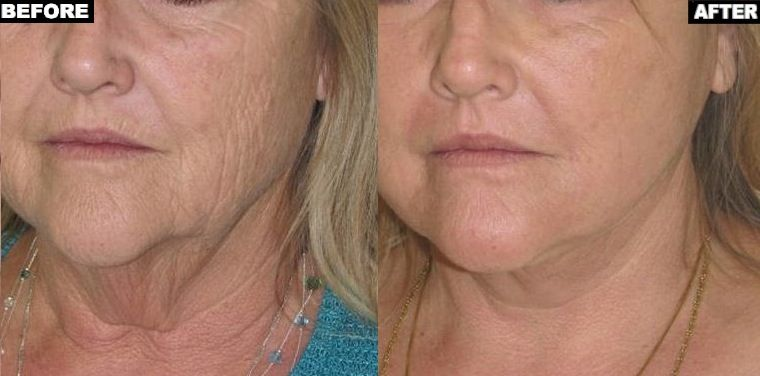 Do U Want Your Skin Look Younger Fraxel Laser Skin Resurfacing Is The Thing You Have To Chose Laser Skin Resurfacing Skin Resurfacing Co2 Laser Resurfacing