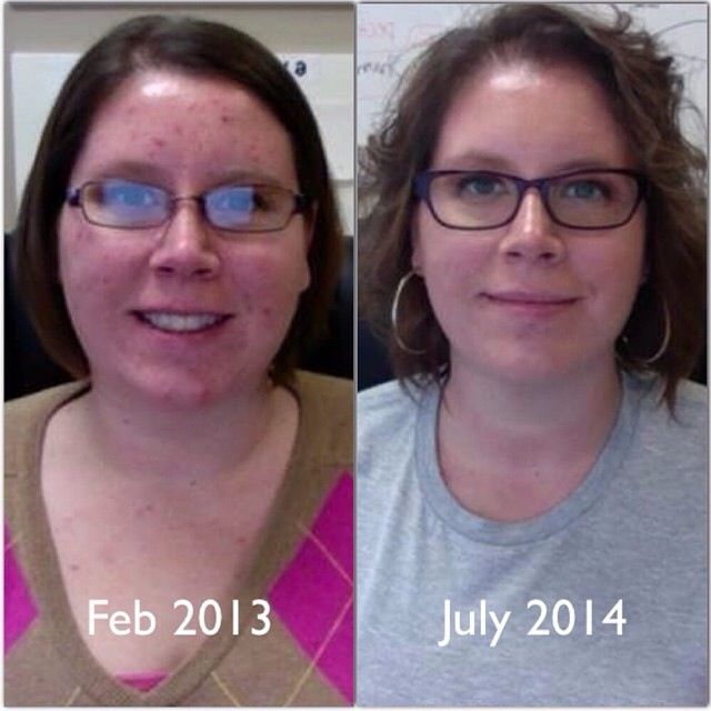 Shannon after simply changing food and exercise. Her skin has dramatically cleared up!
