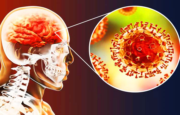 Dolor de cabeza dolor de cuello y fiebre