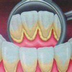 Sarro-dental