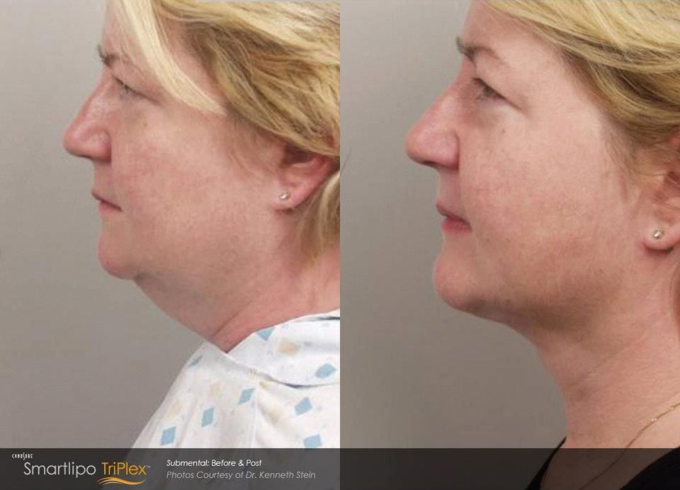 Smartlipo can eliminate your double chin worries! http://www.wifh ...