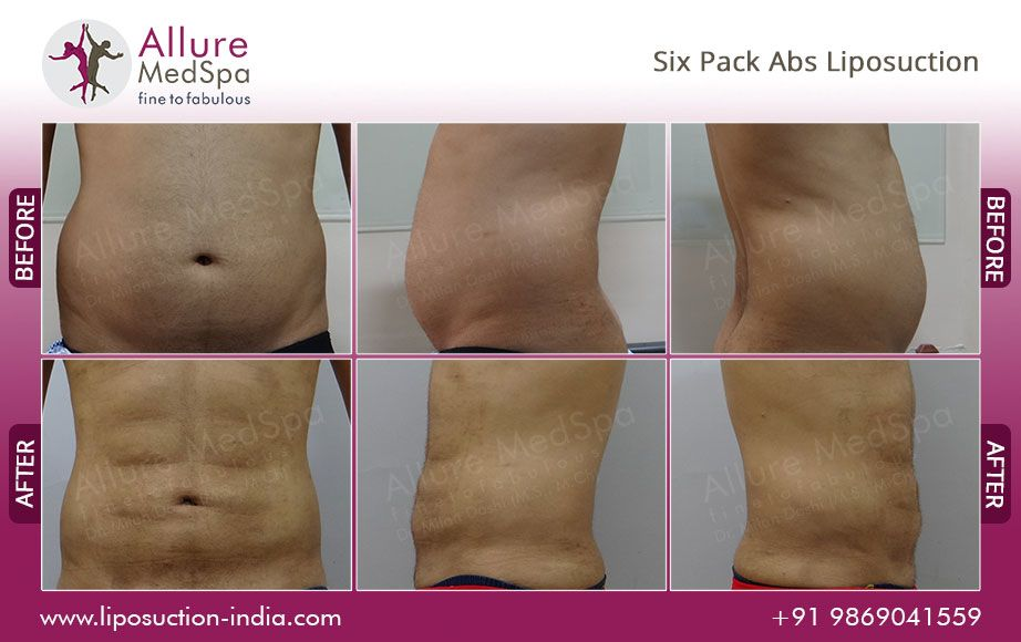 Abdominal Etching Or Six Pack Liposuction Liposculpture Is An
