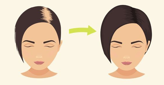 A Baking Soda Treatment to Stop Hair Loss and Promote Hair Grow #cleaning
