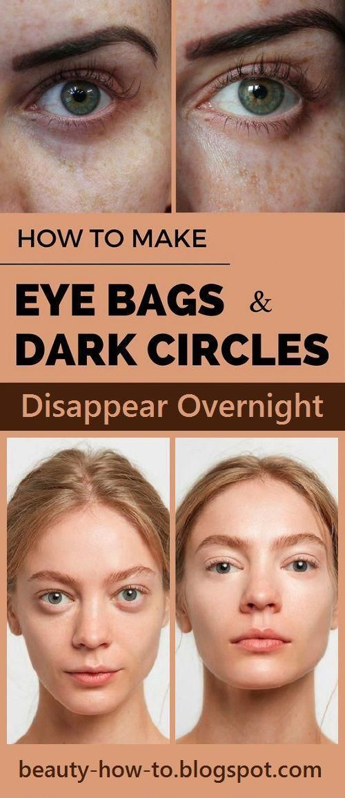 Leaving Facebook -   25 how to get rid of bags under eyes ideas