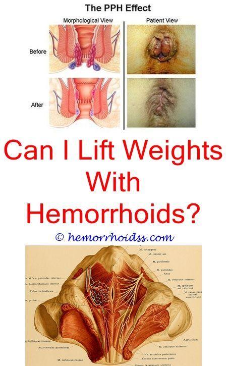 Internal hemmorhoids sex drive