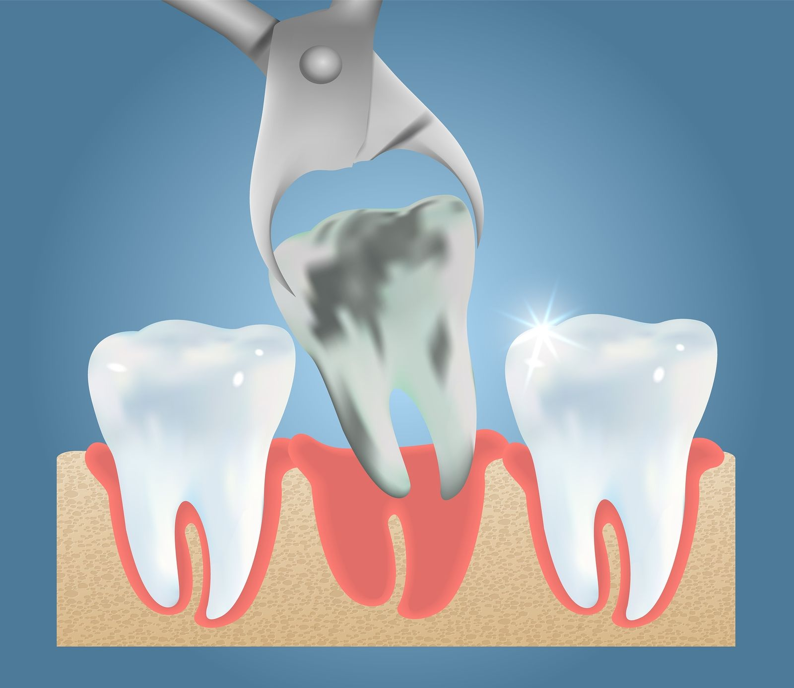 What Is Wisdom Teeth? When Do You Need To Take Appropriate
