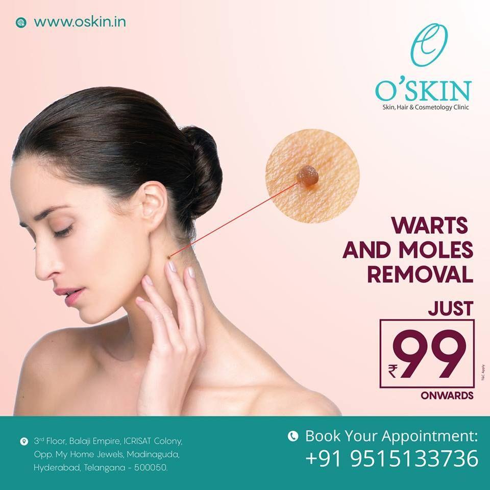 Pin by Oskin Skin & Hair Clinic on O'skin Clinic Hair