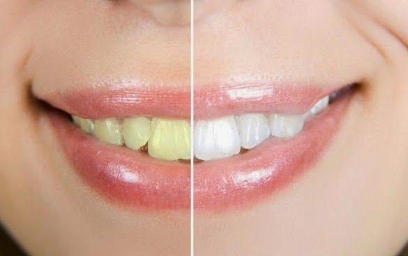 Cara Cepat Alami Putihkan Gigi Aneka Manfaat Buah Buahan Untuk