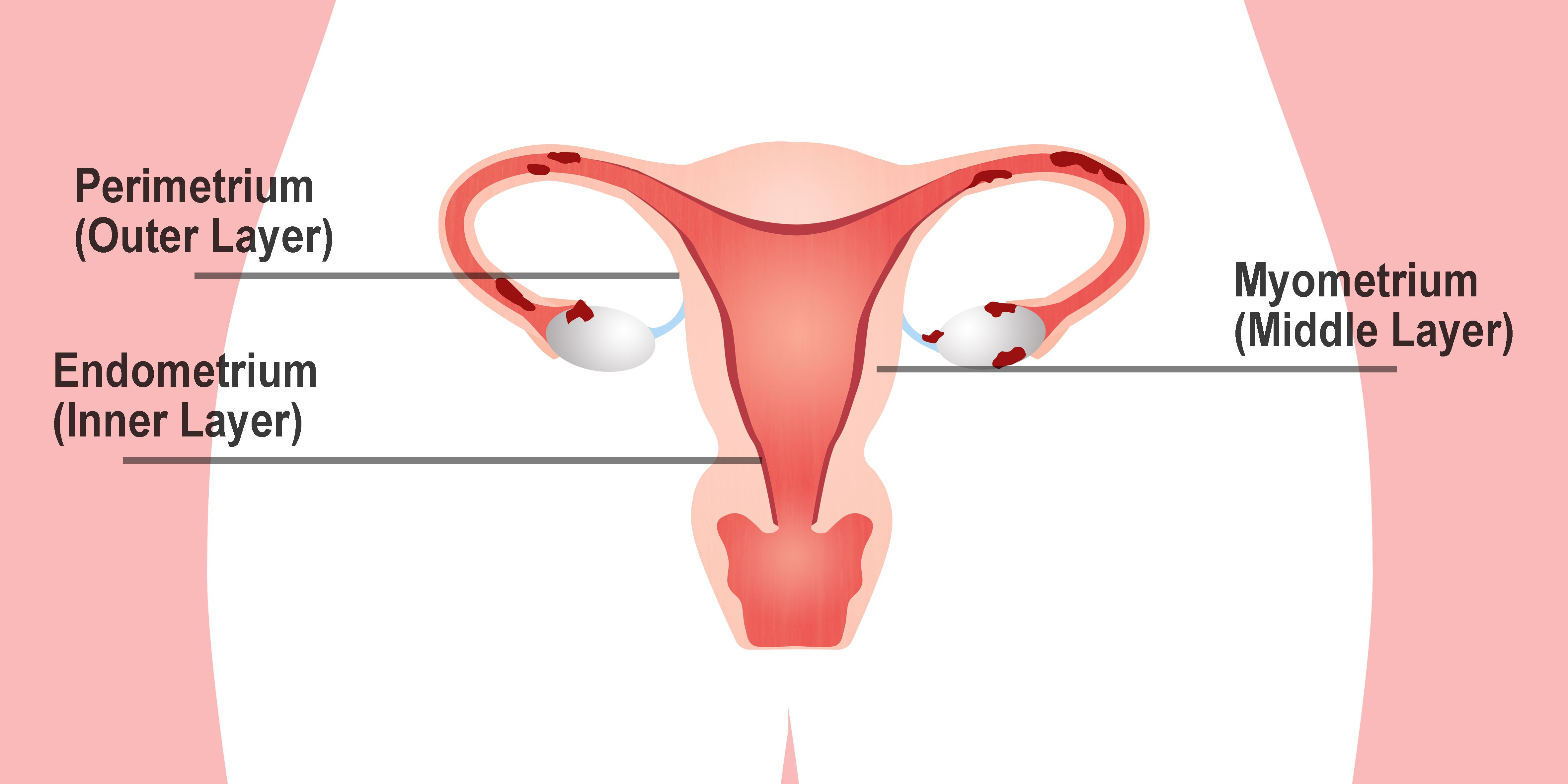 hight resolution of this image shows the three different layers of the uterine wall the perimetrium is the outermost layer the myometrium is the middle layer that consists of