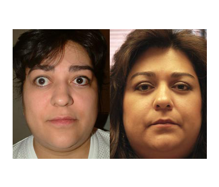 Thyroid Eye Disease Before And After Click Image To Review More Details Thyroid Removal Surgery Thyroid Disease Symptoms Thyroid Surgery