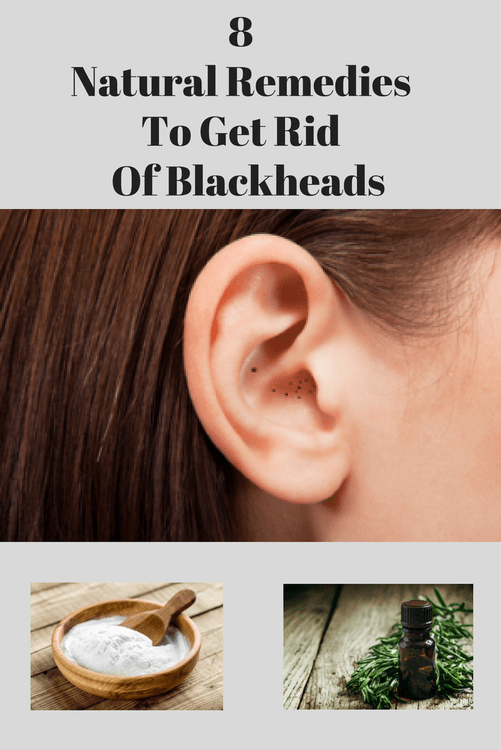 Natural Remedies To Get Rid Of Blackheads From Ears