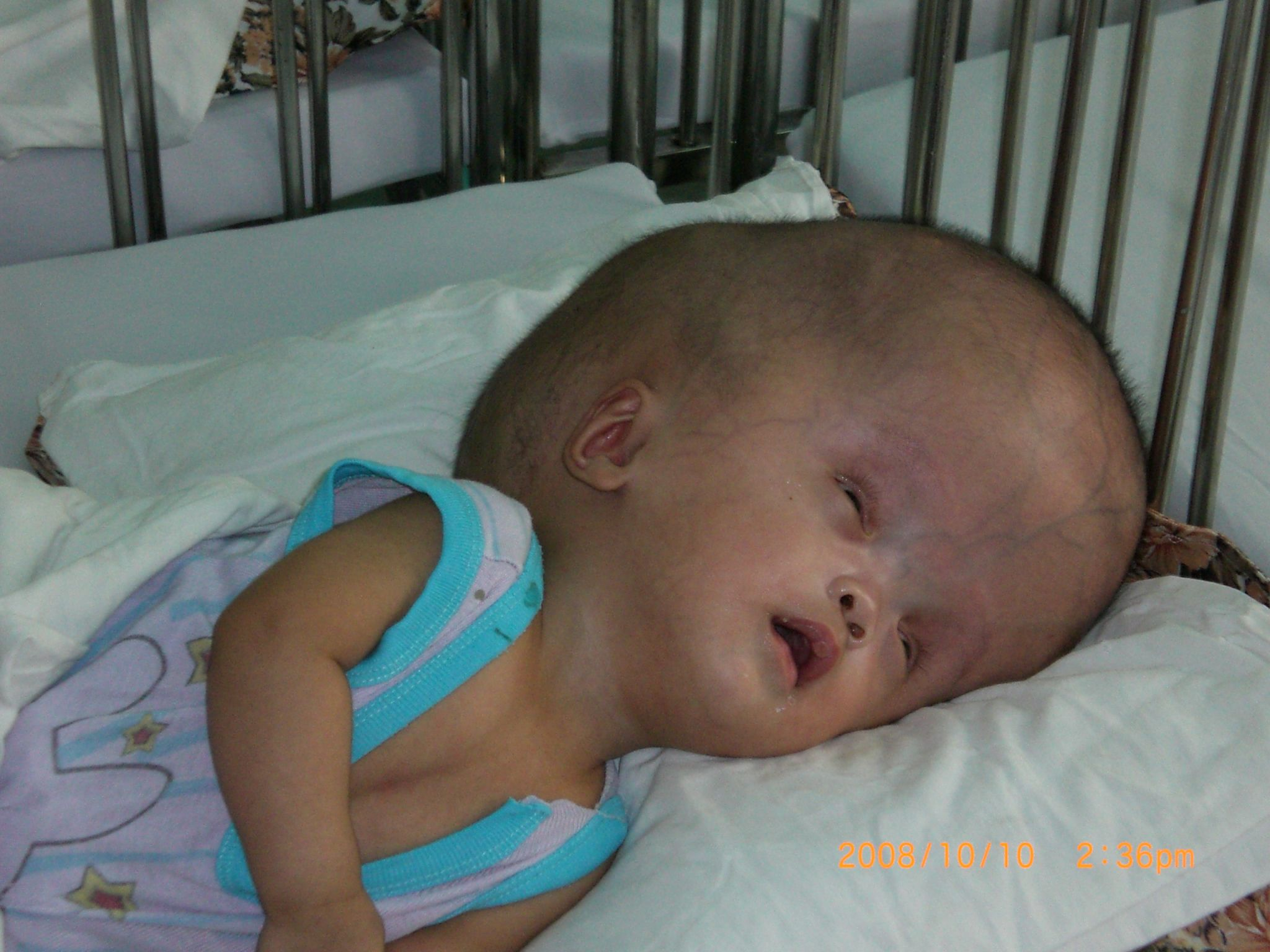 Agent orange diseases affect many today orphans in