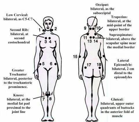 Fibro trigger points * My DEFECTS Fibromyalgia, Fibromyalgia
