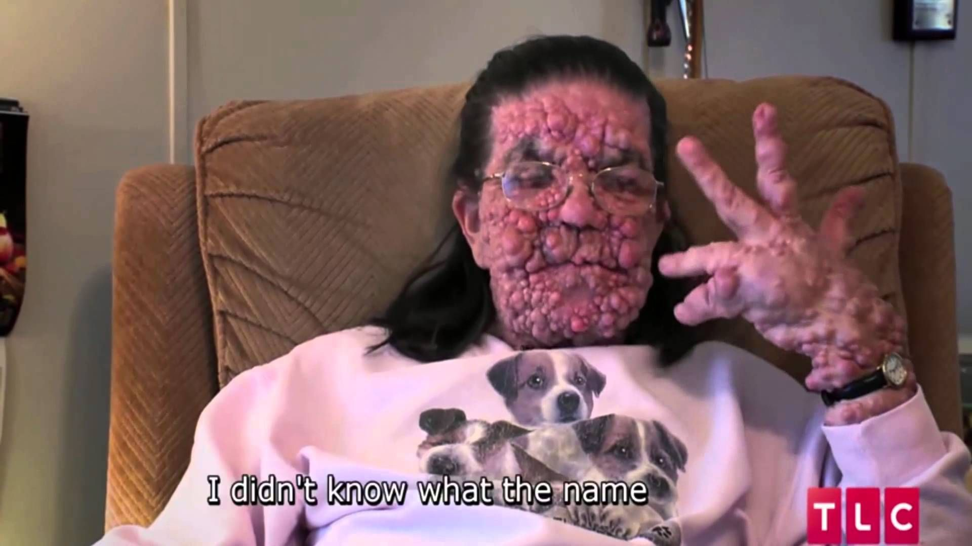 A Curse From The Most High: Incurable Disorder Type 1 Neurofibromatosis