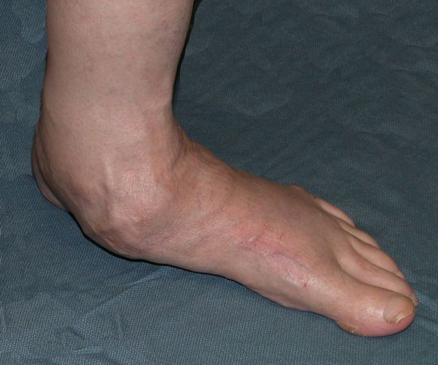 1fa815f4e4905 5 Things You Can Do For Flat Feet: Severe end-stage flat foot. This level  of deformity typically involves surgical correction