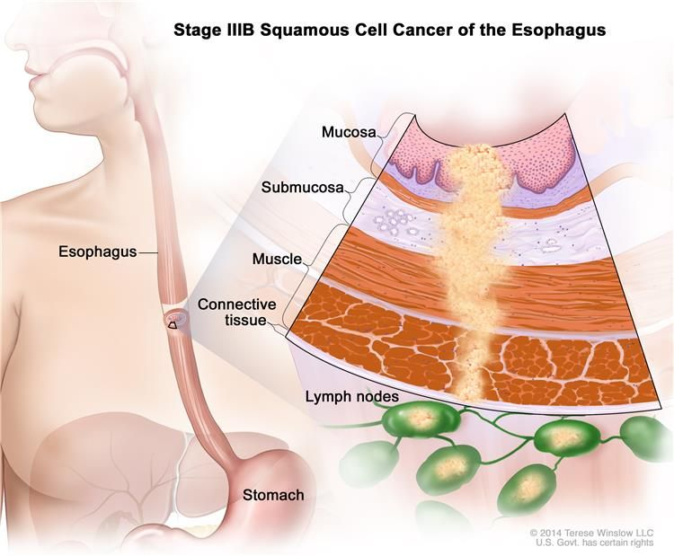 Stage Iiib Squamous Cell Cancer Of The Esophagus Drawing Shows The
