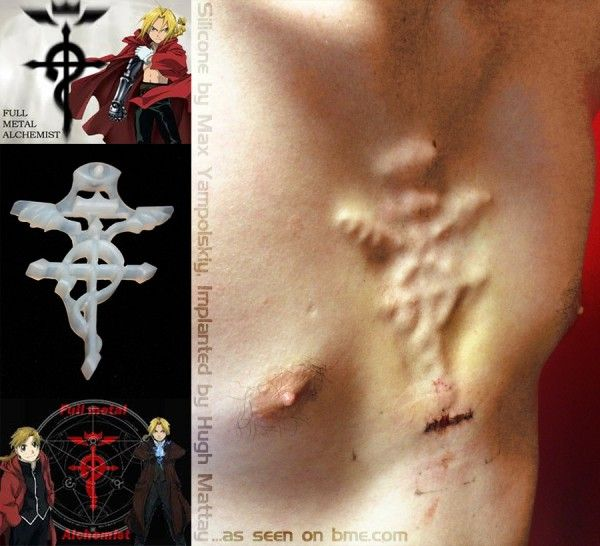 Fullmetal Alchemist Anime Chest Subdermal Implant By Max Yampolskiy Bodymodifications Bodymods Body Mods Crystal Statement Earrings Scarification