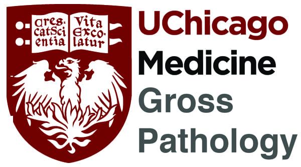 Lipoma Gross Pathology Manual (With images) Pathology