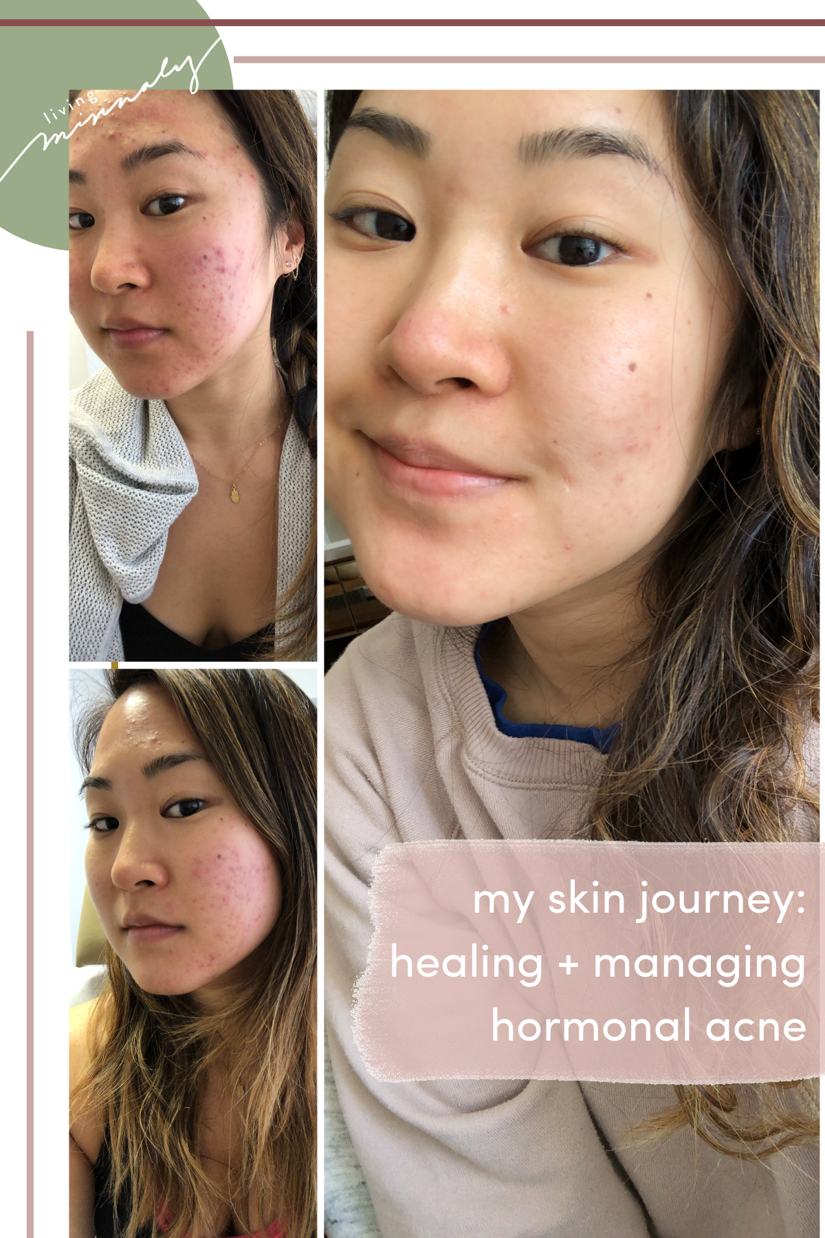 My Hormonal Acne Journey Healing Managing Acne Living Minnaly Hormonal Acne Acne Treatment Skin Care Acne