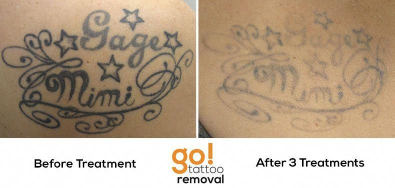 Just two laser tattoo removal treatments and more than 50