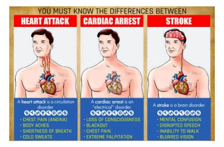 The Big Difference Between Heart Attack, Stroke And Cardiac Arrest. This May Surprise You – Health Live Tips