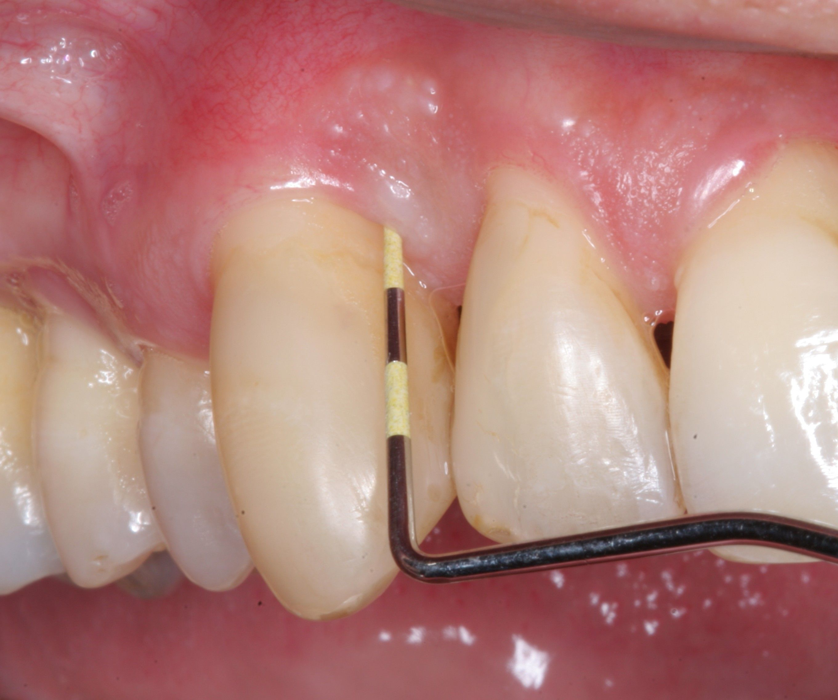 The Cost Of Periodontal Disease Gum Disease Treatments
