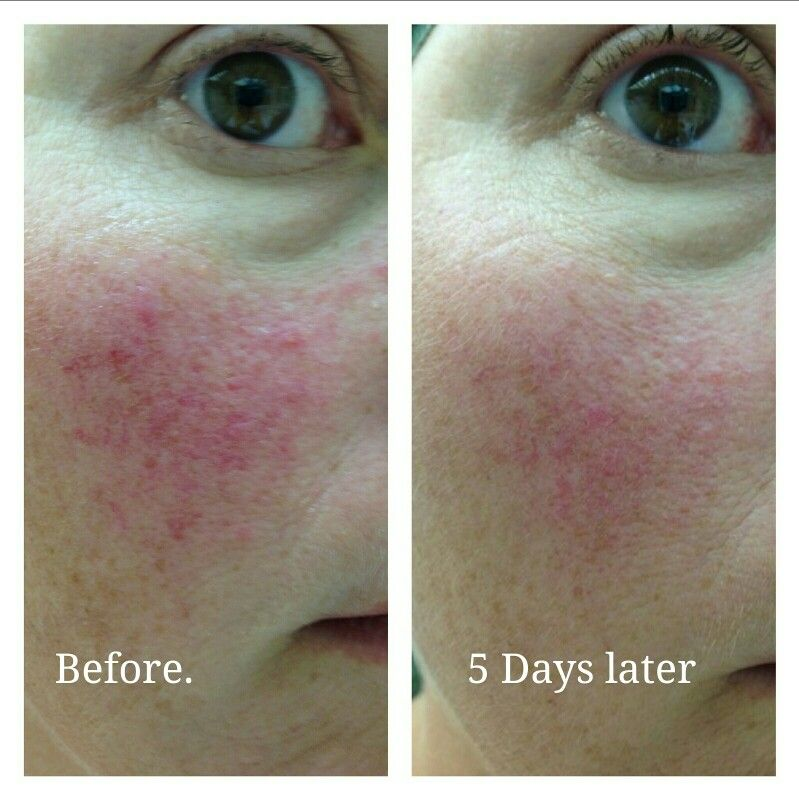 My Client Awesome Success With Arbonne Calm Line For Her Rosacea