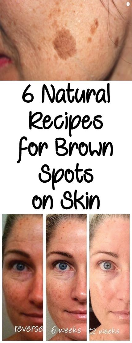 Brown spots, known as melasma, are skin pigmentations that ...
