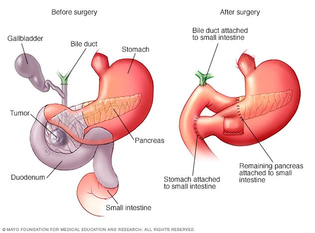 Whipple Procedure Labs Whipple Procedure Cancer Surgery