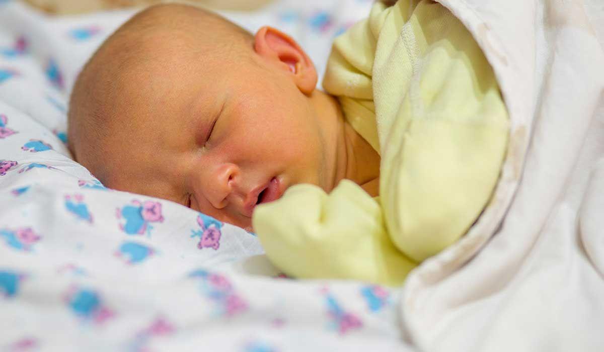 أبو صفار عند الأطفال حديثي الولادة Jaundice Newborn Baby Jaundice Jaundice