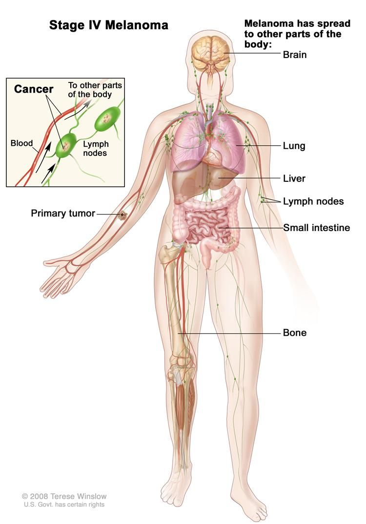 small resolution of body diagram skin cancer diagram data schema body diagram skin cancer wiring diagrams operations body diagram