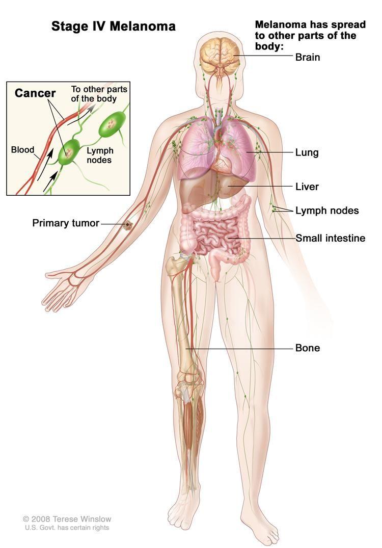 body diagram skin cancer diagram data schema body diagram skin cancer wiring diagrams operations body diagram [ 750 x 1075 Pixel ]