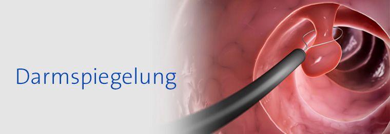 Darmpolyp-Entfernung, Foto: Eraxion/Thinkstock © Krebsinformationsdienst, Deutsches Krebsforschungszentrum - https://www.krebsinformationsdienst.de/untersuchung/darmspiegelung.php
