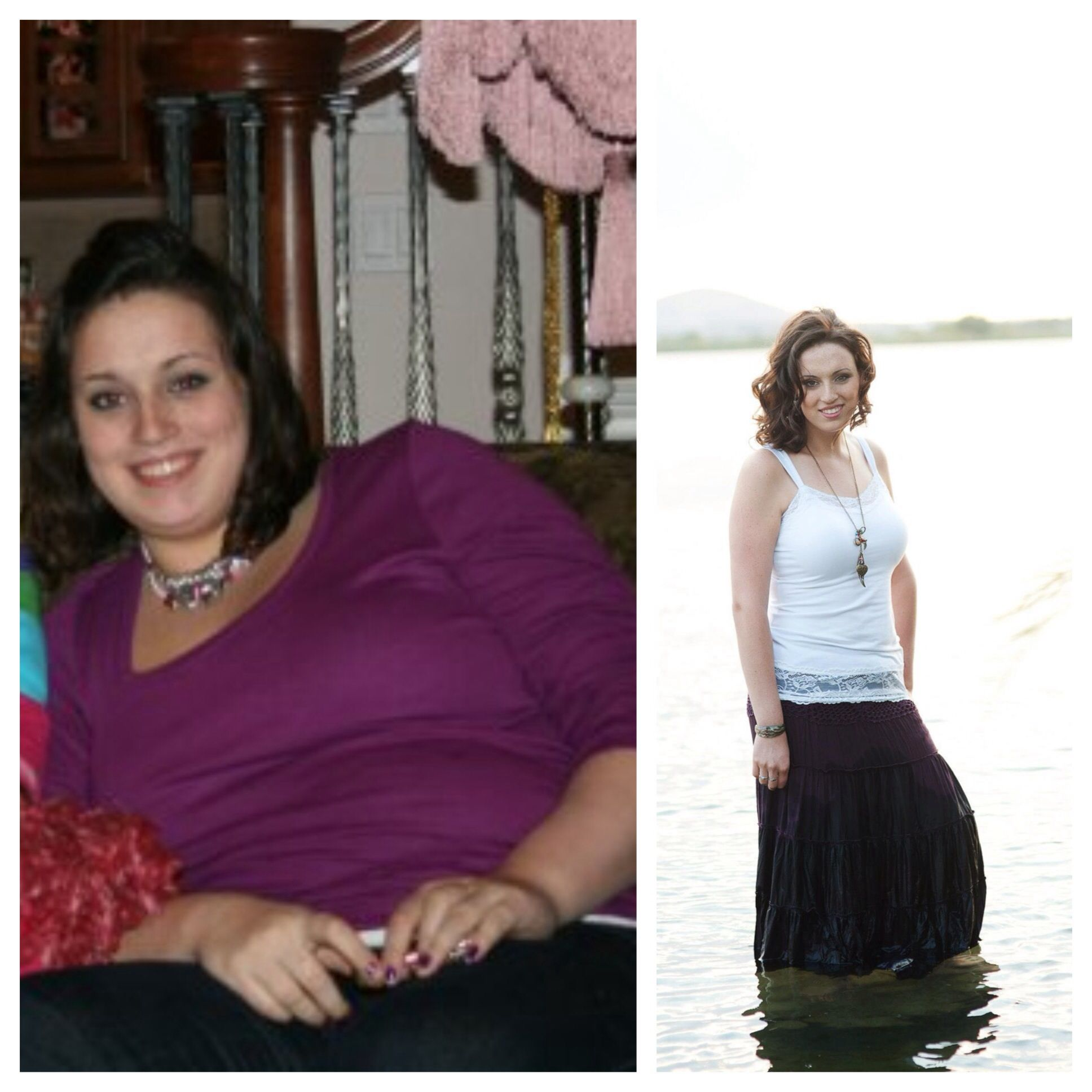 I Wanted To Post A Before And After Picture Of The: Vertical Gastric Sleeve B&A