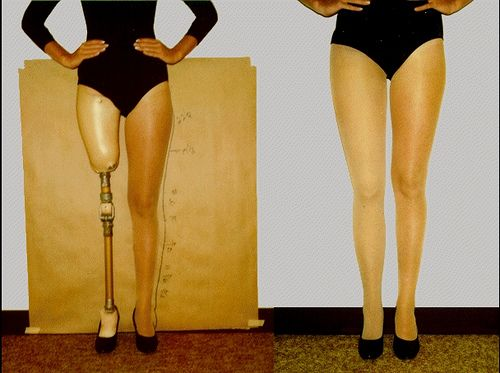 Endoskeletal Above Knee Prosthesis For Above Knee Amputee
