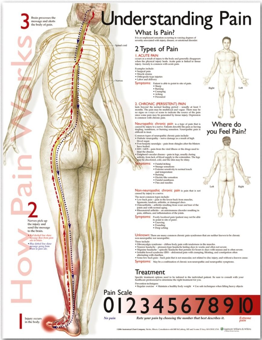 understanding pain poster anatomical chart company anatomystuff [ 868 x 1125 Pixel ]