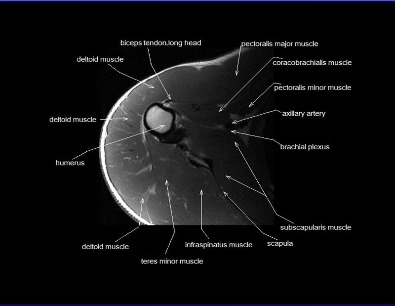 Shoulder Anatomy Mri Shoulder Axial Anatomy Free Cross Sectional