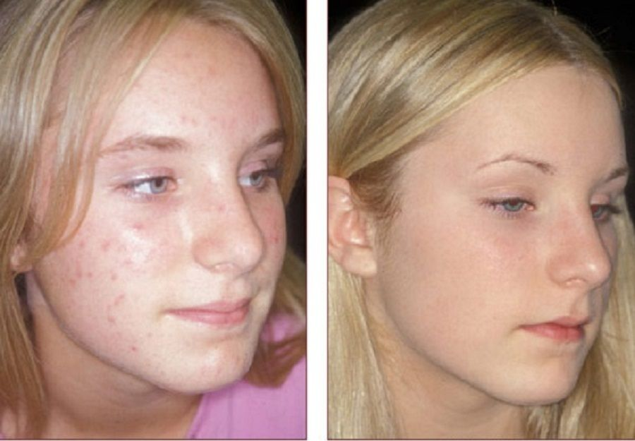 chemische peeling acne