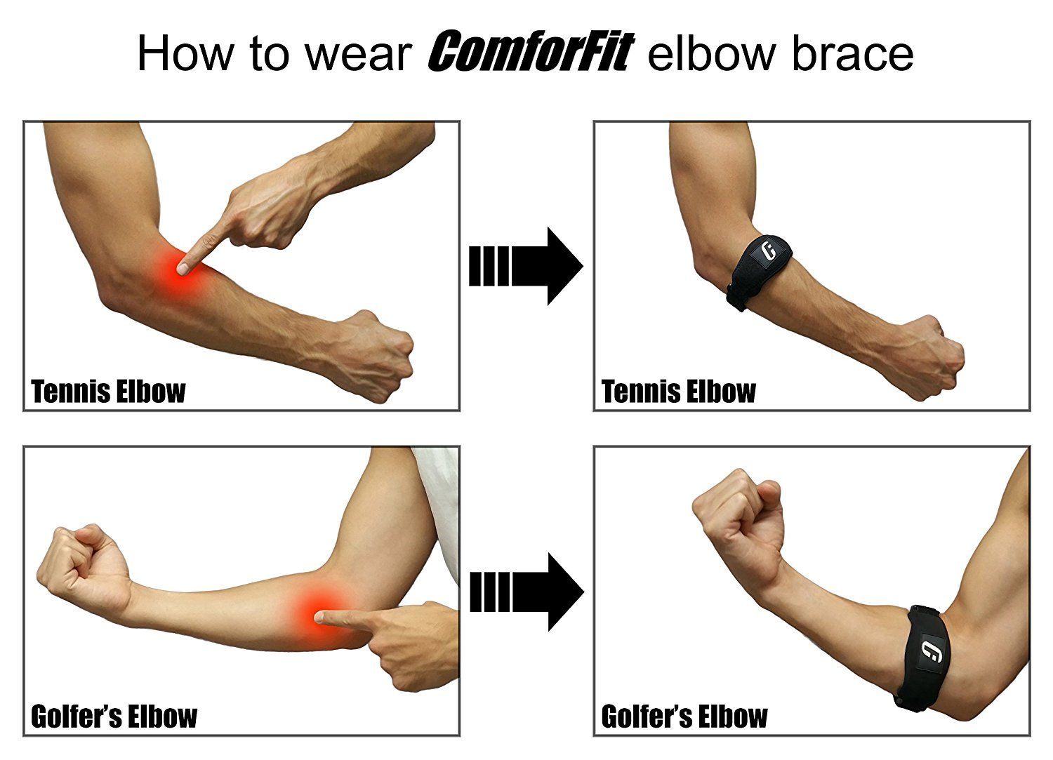 Counterforce brace for lateral or medial elbow