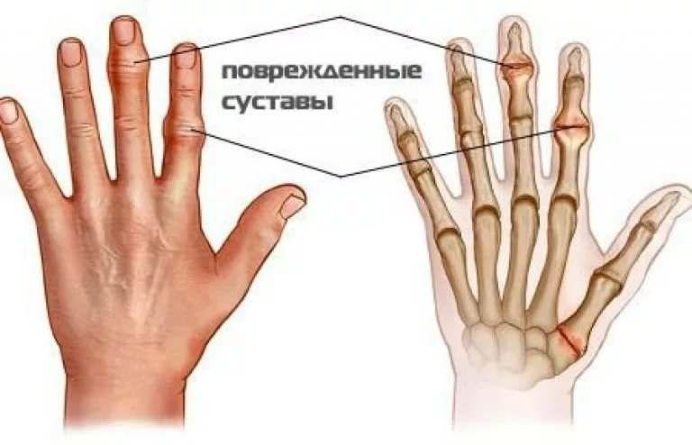 хотел болят суставы пальцев лечение обманывайтесь