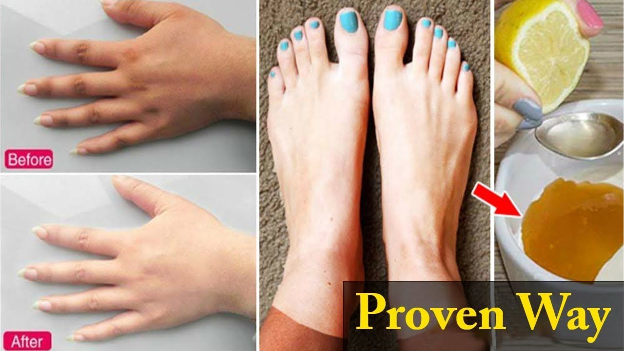 Pin On How To Lighten Your Dark Hands And Feet
